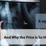 used portable x ray equipment